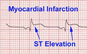 This is what ST Elevation looks like on an EKG / ECG