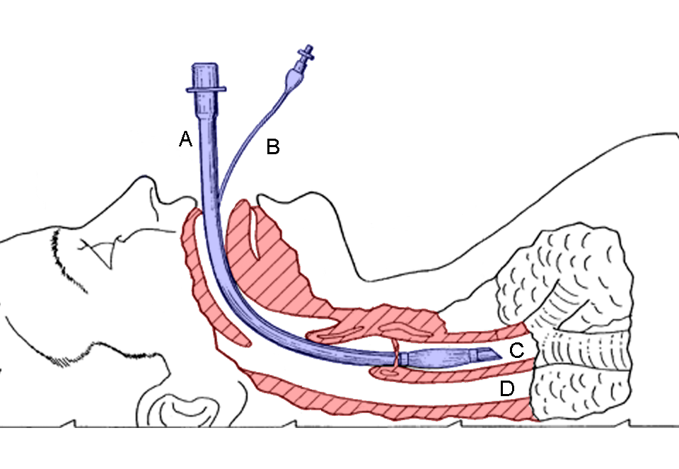 Endotracheal Intubation and the Paramedic's Scope of Practice